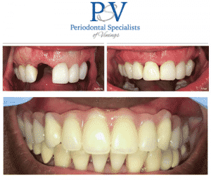 bezreh periodontiocs before and after (1)