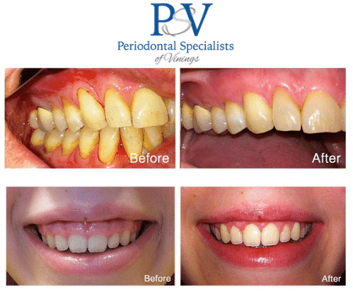 bezreh periodontiocs before and after